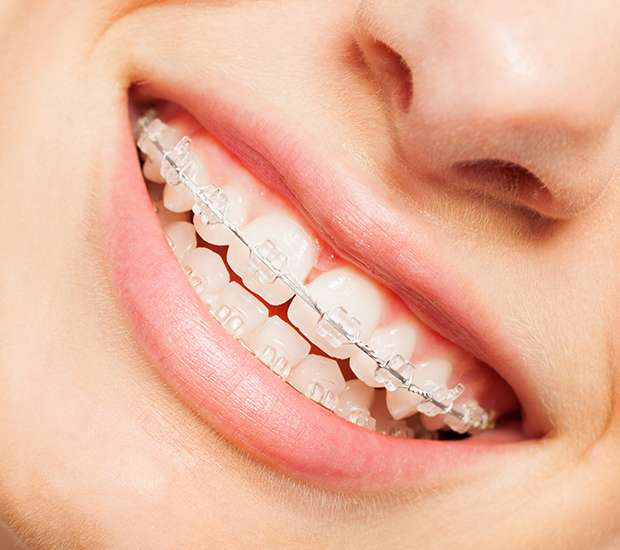 Bellflower Clear Braces
