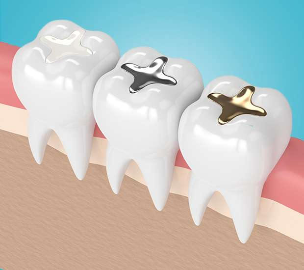 Bellflower Composite Fillings