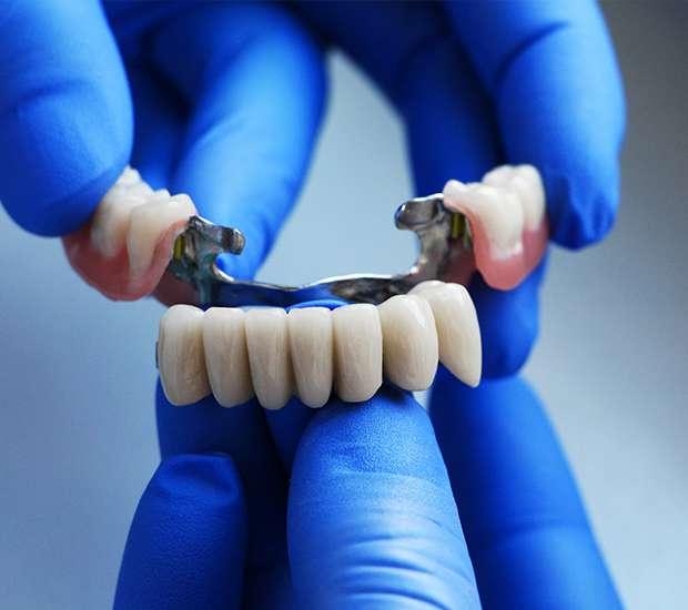 Bellflower Dental Bridges