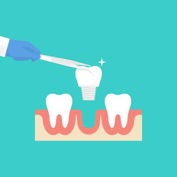Facts And Myths About Dental Implants You Need To Know