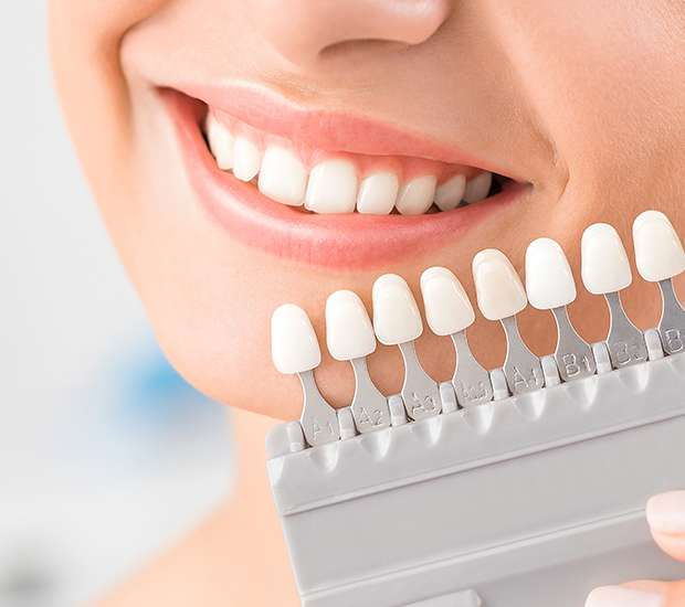 Bellflower Dental Veneers and Dental Laminates