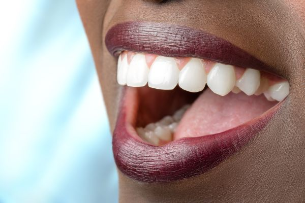 Full Mouth Reconstruction Can Give You A Beautiful New Smile