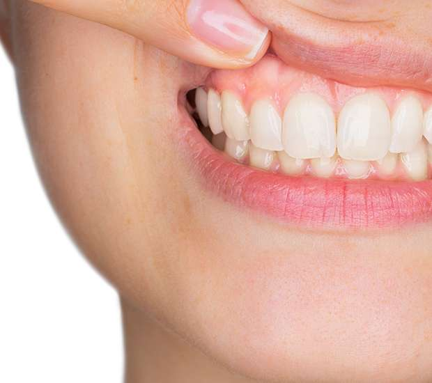 Bellflower Gum Disease