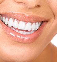 Teeth Whitening Services Bellflower, CA